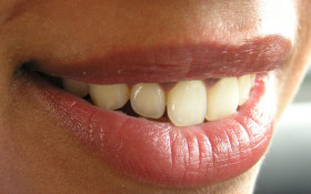 Senseless Survey: How much money do you save on teeth whitening by not smiling?