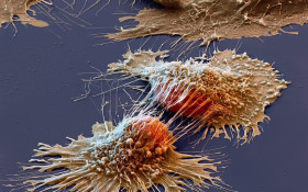 New breakthrough will help target optimum cancer drugs for use in patients