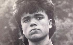 Peter Dinklage Sported '80s Mullet in Yearbook Photo