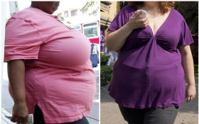 [LISTEN] Why SA is facing an obesity crisis