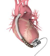 Cutting edge mechanical heart device is saving lives!