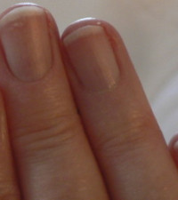 What your nails say about your health (and how to restore them after damage)