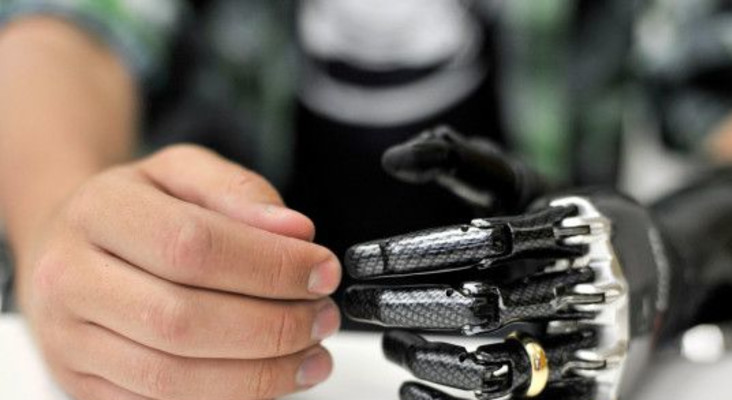 Wits students develop affordable prosthetic hand using 3D printing