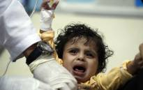 A Yemeni child, suspected of being infected with cholera, receives treatment at a hospital in Sanaa on 15 May 2017. Picture: AFP.