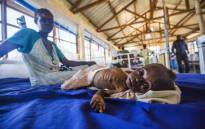A two-month-old girl with a severe malnutrition lays on a bed next to her mother at the Aweil State Hospital, in Aweil, Northern Bahr El-Gazhal, South Sudan. Picture: AFP.