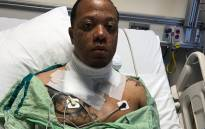 Wiley Day  was nearly electrocuted by his iPhone charger. Picture: Twitter.