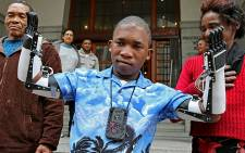 """Flippie Engelbrecht is seen with his parents Flip and Katrina after he received prosthetic hands in Cape Town on 16 August 2013. Picture: Sapa"""""""