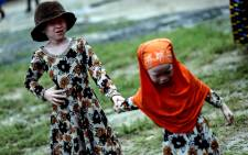 This image courtesy of the Milliyet Daily shows albino children in Dar es Salaam, Tanzania. Picture: AFP.