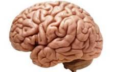 Brain. Picture: Wikimedia Commons.