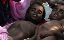 Two Somali children suffering from malnutrition lie at a camp for Internally Displaced People (IDP) near Mogadishu airport on 18 July 2011. Picture: AFP