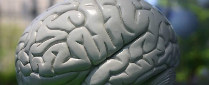 Brain. Picture: freeimages.com