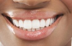 There are more pros than cons to teeth whitening explains dental hygienist