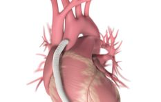 Broken heart syndrome is prevalent in older women - cardiologist