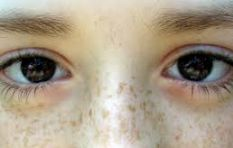 Having freckls? Don't be ashamed, start flaunting them