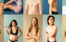 This empowering social media campaign #BehindTheScars is beautiful