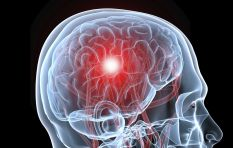 What is a stroke and can one be prevented?