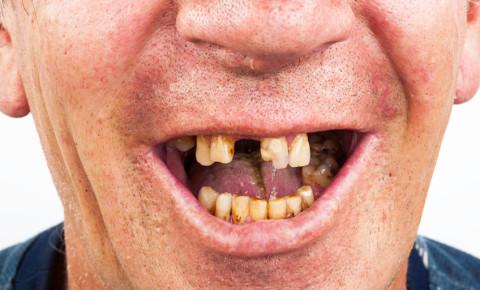 Bad rotten cavities teeth dental 123rf