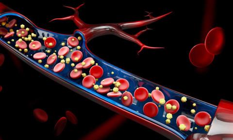Vascular system virus coronavirus blood vessel covid-19 123rf 123rflifestyle