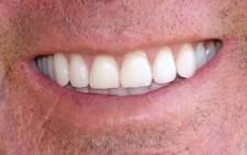 Teeth. Picture: Free Images