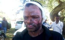 An Ethiopian victim of xenophobic violence in Duduza. He was set alight in his shop by angry residents. Picture: Vumani Mkhize/EWN