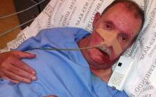Daniel du Toit developed severe bedsores after spending a month at the Tygerberg Hospital. Picture: Supplied.