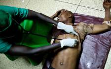 A doctor treats a victim at Mulago hospital in Kampala late on July 11, 2010 after twin bomb blasts. Picture: AFP