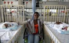 Ntombikayise Tyhalisi sits between her twins Siphosethu and Amahle after a successful operation to separate them. Picture: Supplied.