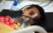 A Yemeni child suffering from a diphtheria infection receives treatment at a hospital in the capital Sanaa, on 31 October 2018. Yemen's brutal conflict has since 2015 left some 10,000 people dead and has created what the UN has dubbed the world's worst humanitarian crisis. Picture: AFP