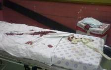 A security guard is in a critical condition in hospital after being attacked by a group of gangsters.
