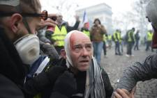 FILE: An injured Yellow vest (Gilet jaune) protestor looks on on the Champs Elysees in Paris, during a protest against rising oil prices and living costs. 