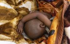 A baby sleeps at the Tudikolela hospital, that is a beneficiary of the NGO ACF (Action contre la faim), in the community of Lipemba, on the outskirts of outskirts of Mbuji-mayi, Kasai region, in Democratic Republic of Congo (DRC), on May 1, 2021. Picture: Arsene Mpiana / AFP.
