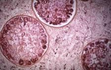 A screengrab of the meningitis virus.