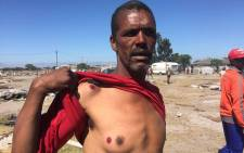 A man shows his wounds after being shot with rubber bullets by the police who were demolishing illegally built structures at Parkwood. Picture: Siyabonga Sesant/EWN.