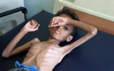 Yemeni boy Ghazi Ali bin Ali, 10, suffering from severe malnutrition lies on a bed at a hospital in Jabal Habashi on the outskirts of the city of Taiz, on 30 October 2018. Picture: AFP.