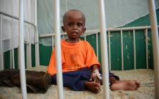 FILE: A malnourished child sits on a bed in Banadir Hospital in Mogadishu. Picture: AFP.