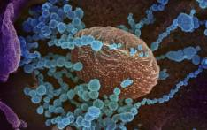 This handout illustration image obtained February 27, 2020 courtesy of the National Institutes of Health taken with a scanning electron microscope shows SARS-CoV-2 (round blue objects) emerging from the surface of cells cultured in the lab, SARS-CoV-2, also known as 2019-nCoV, is the virus that causes COVID-19, the virus shown was isolated from a patient in the US. Picture: AFP.