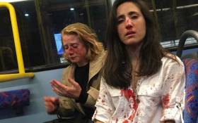 Melania Geymonat, 28, said she and her girlfriend, Chris, were left covered in blood after the attack last week. Picture: Melania Geymonat/Facebook