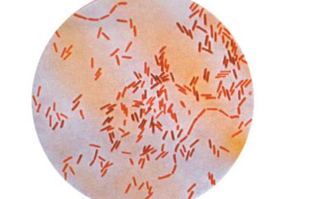 typhoid fever short story