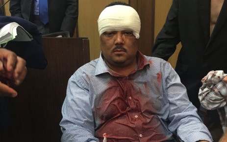 A Melson Mandela Bay Metro Municipality councillor receiving treatment after a brawl in a council meeting. Picture: Athol Trollip