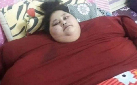 500kg Woman Undergoes Weight Loss Surgery In Mumbai