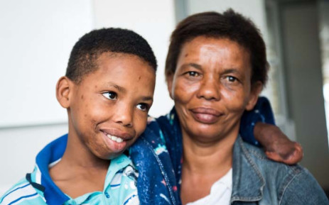 Twelve-year-old Clayton Snyman (left) underwent life-changing reconstructive surgery on 31 October 2018 at Red Cross War Memorial Children's Hospital in Cape Town. Picture: Supplied