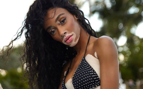 Model Winnie Harlow. Picture: @officialwinnieharlow/Facebook.com.