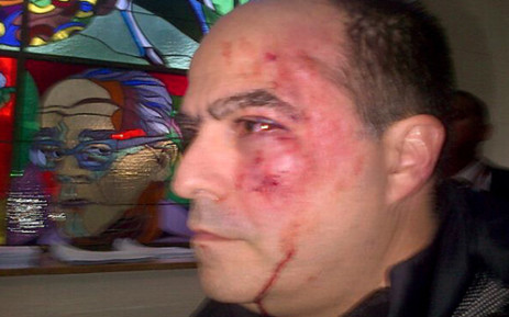 Handout picture released by the Primero Justicia party press office showing opposition deputy Julio Borges after a fight with the ruling party deputies inside the Venezuelan parliament, in Caracas on April 30, 2013