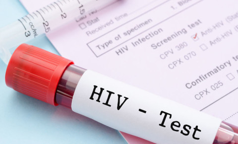 Sample blood collection tube with HIV test label on HIV infection 123rf