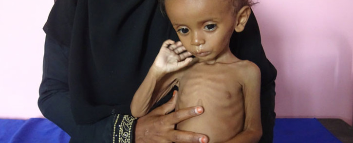 A Yemeni mother holds her malnourished child as they wait for treatments in a medical centre in the village of Al Mutaynah, in the Tuhayta province, western Yemen, in November 2018. Picture: AFP.