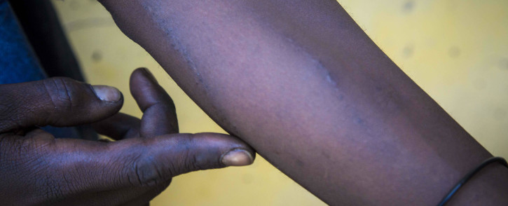 A Nyope user in Pretoria shows off his tracks, where he has used a needle and syringe to shoot the drug. Picture: Thomas Holder/EWN