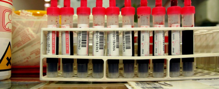 Blood test samples. Picture: Free Images.