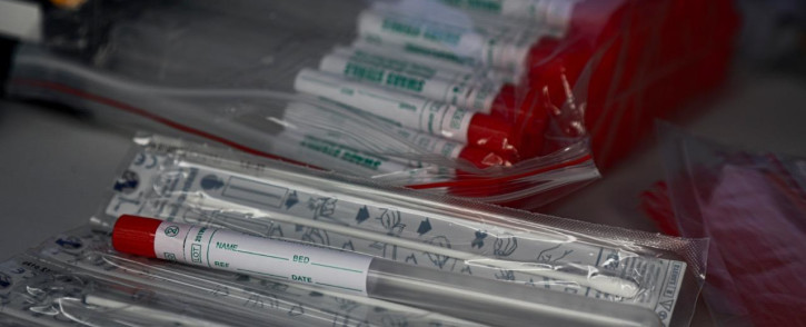 FILE: Medical swabs to test for the coronavirus. Picture: Kayleen Morgan/EWN.