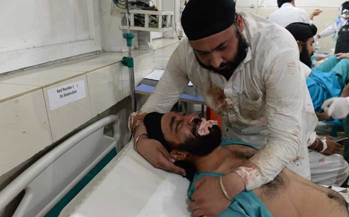 An Afghan victim receives treatments at a hospital following a suicide attack in Jalalabad. Picture: AFP.