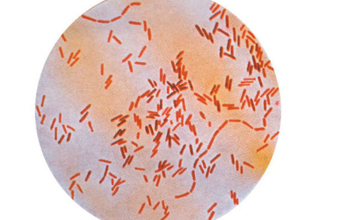 A photomicrograph of the 'Salmonella typhi' bacteria, which is the cause of typhoid fever. Picture: CDC.